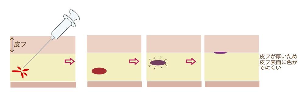 皮フ厚い内出血3