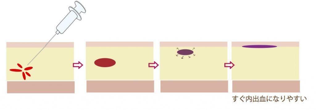 皮フ薄い内出血4