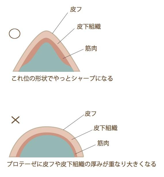 ago図3