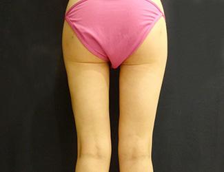 太ももの脂肪吸引の症例写真1(術後)外側の張り出し
