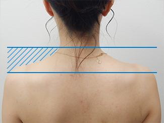 肩こり解消注射の症例写真(術後)