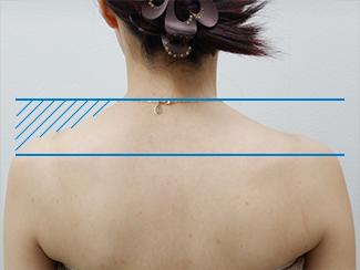 肩こり解消注射の症例写真(術前)
