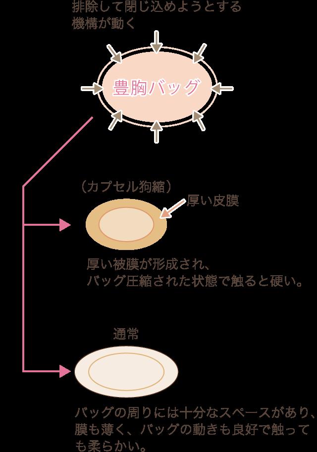 豊胸用シリコン拘縮の図