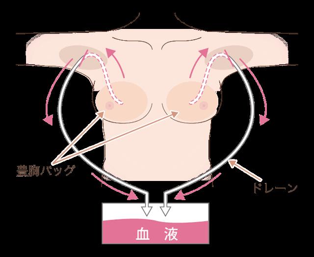 シリコンバック豊胸術後のドレーン装着図