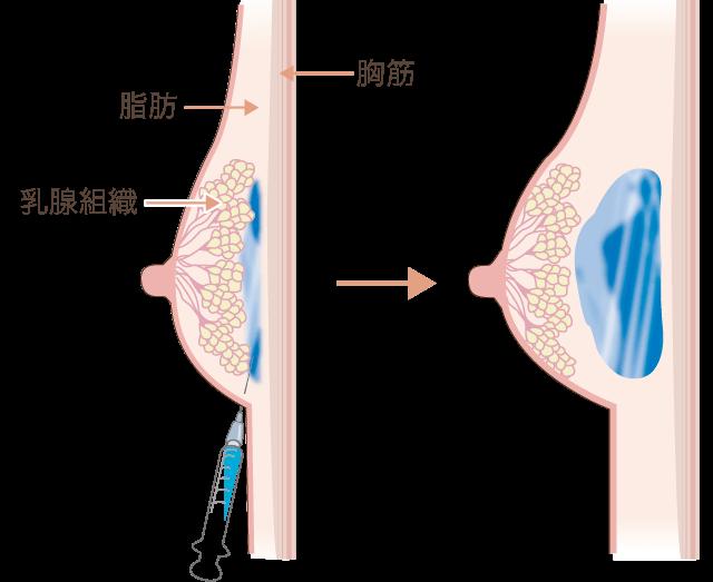 胸のヒアルロン酸注入仕組み図