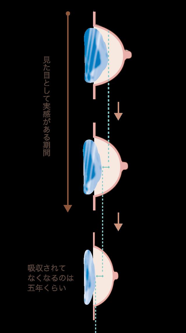 ハイアコープ約5年経過の図