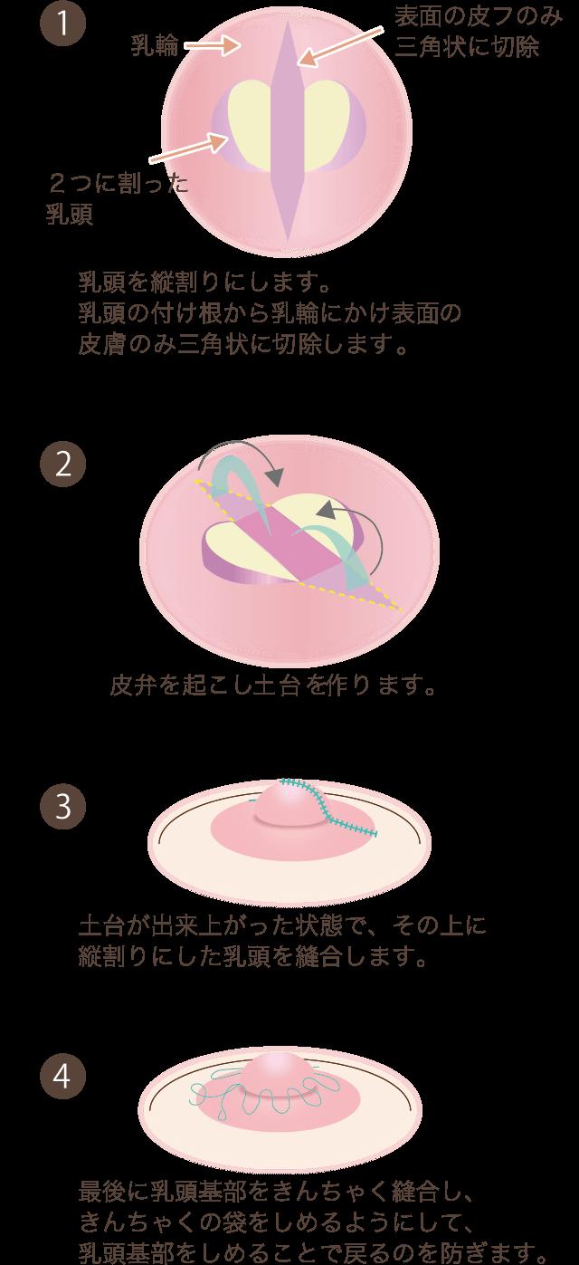 乳頭縮小の手術方法解説図