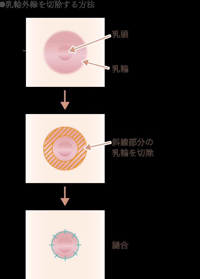 乳輪外縁の切除方法の図