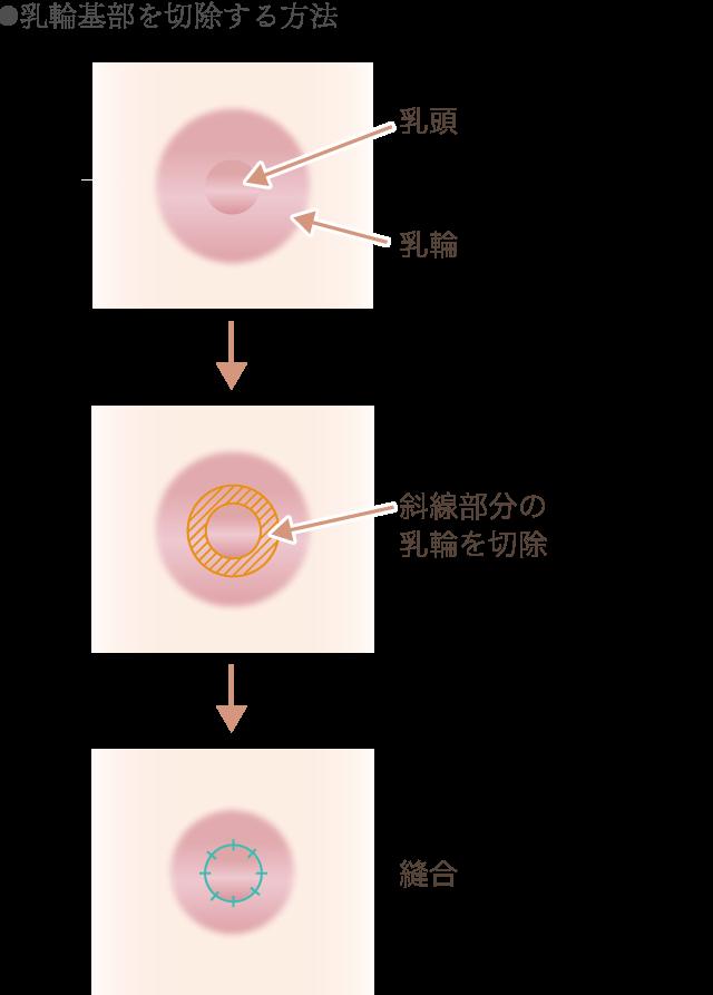 乳輪基部の切除方法の図