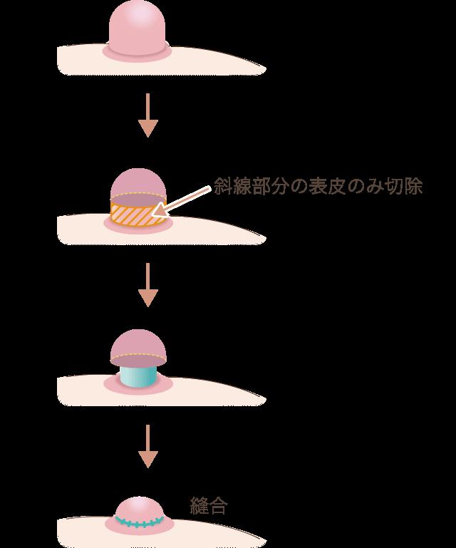 乳頭縮小(高さ)の仕組み図
