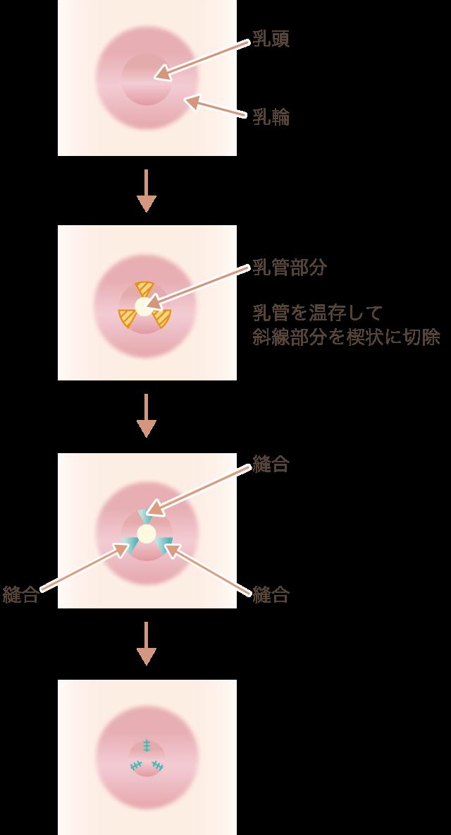 乳頭縮小(大きさ)の仕組み図
