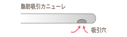 クリス・クロス法脂肪吸引カニューレ説明図