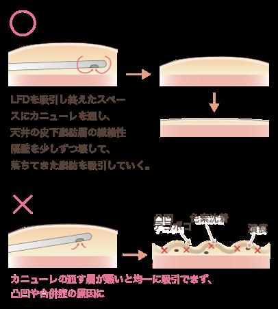 クリス・クロス法皮下脂肪層の吸引説明図