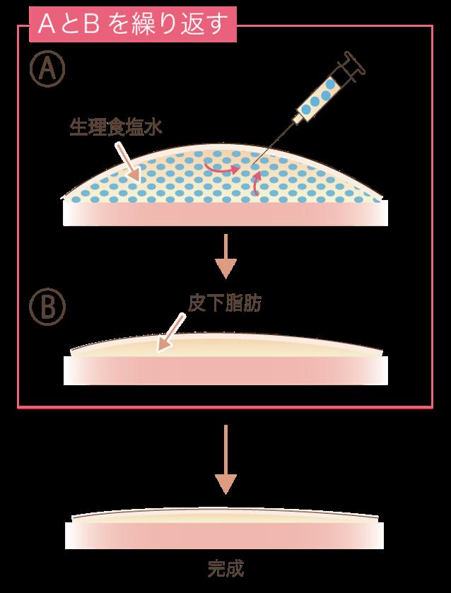 リサーフェイシング法説明図
