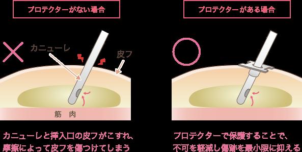 脂肪吸引の傷跡への配慮説明図1