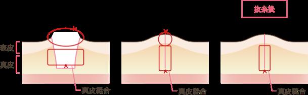 脂肪吸引の傷跡への配慮説明図2