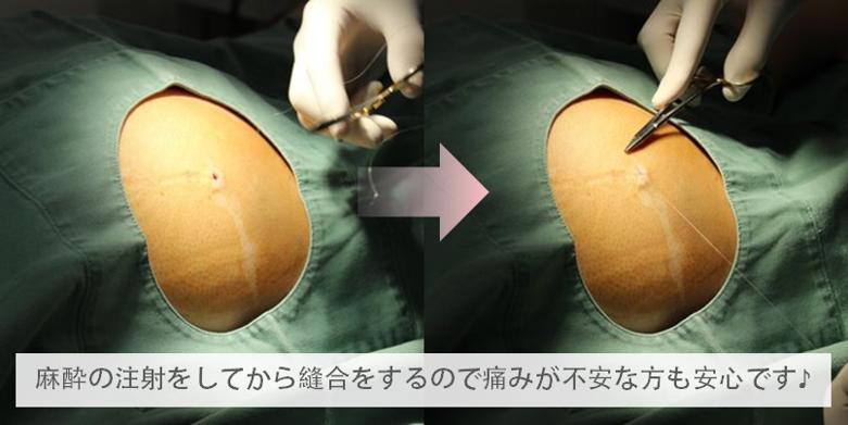 脂肪吸引の傷跡への配慮説明図3