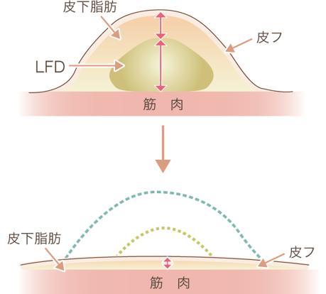 脂肪吸引の場合説明図