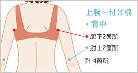 二の腕の脂肪吸引の傷の位置