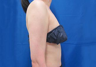 二の腕の脂肪吸引2(術後)気を付けをした時の変化