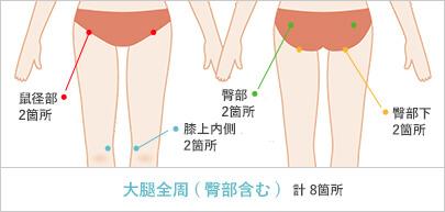 太ももの脂肪吸引の傷口 計8箇所