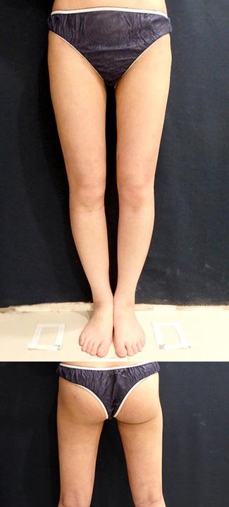 太もも・おしりの脂肪吸引の症例写真1(術後)