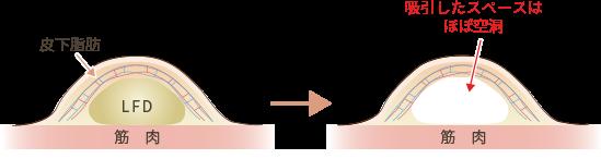吸引部位に水が貯まる理由説明図1