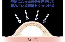 吸引部位に水が貯まる理由説明図2