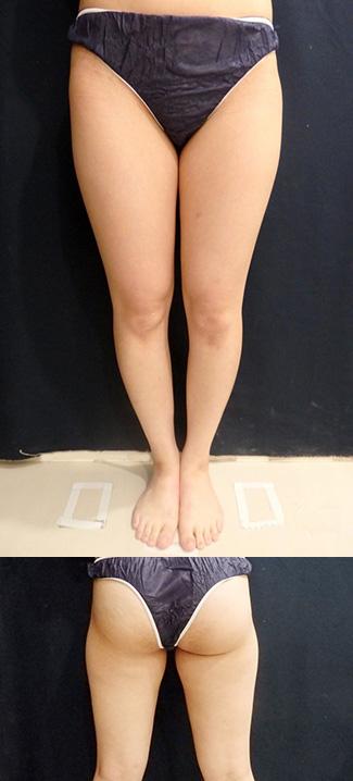 太もも・おしりの脂肪吸引の症例写真1(術前)