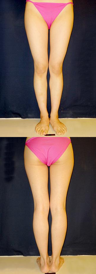 太もも・おしりの脂肪吸引の症例写真3(術前)