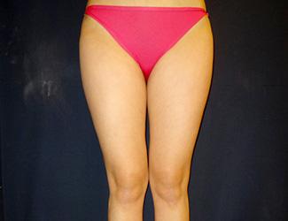 太ももの脂肪吸引の症例写真1(術前)太ももの内側にすき間