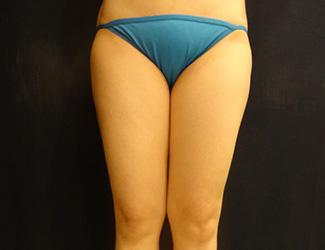 太ももの脂肪吸引の症例写真3(術前)太ももの内側にすき間