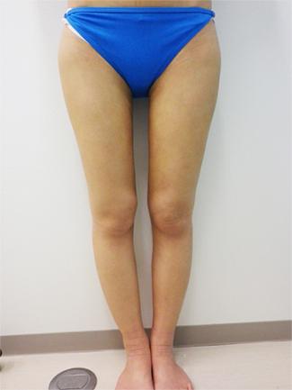 より高い痩身効果ご希望の方には脂肪吸引がおすすめ(術後)