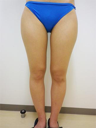 より高い痩身効果ご希望の方には脂肪吸引がおすすめ(術前)