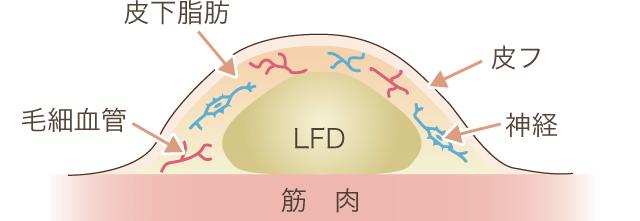 LFD断面図