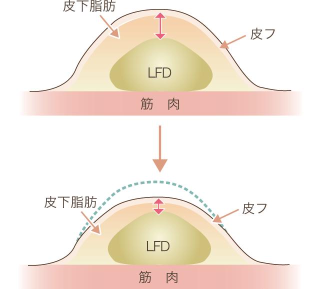 ダイエットの場合の皮下組織断面図