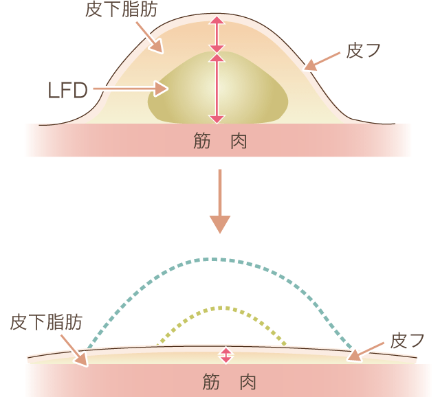 脂肪吸引した場合の皮下組織断面図