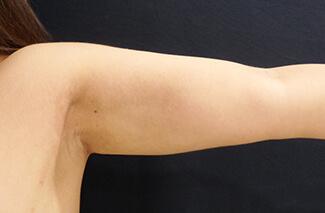 二の腕の脂肪吸引施術前後の写真①(術後)
