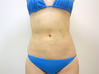 お腹の脂肪吸引施術前後の写真②(術後)