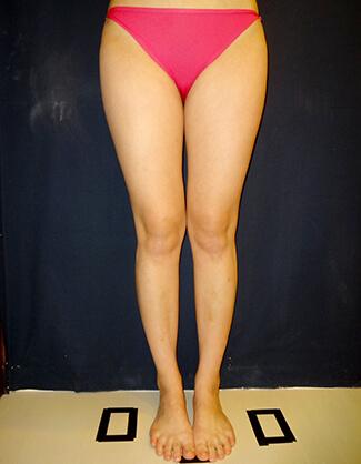 太もも脂肪吸引術前後の写真③(術前)