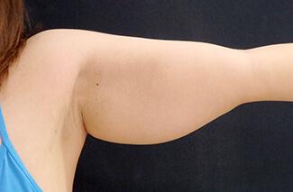 二の腕の脂肪吸引施術前後の写真①(術前)