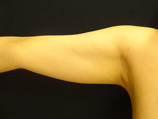 二の腕の脂肪吸引施術前後の写真②(術前)
