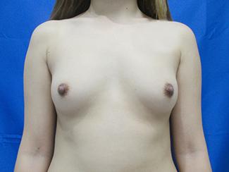 脂肪吸引した脂肪を使った豊胸術の写真①(術前)