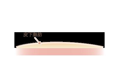 脂肪吸引後の断面図