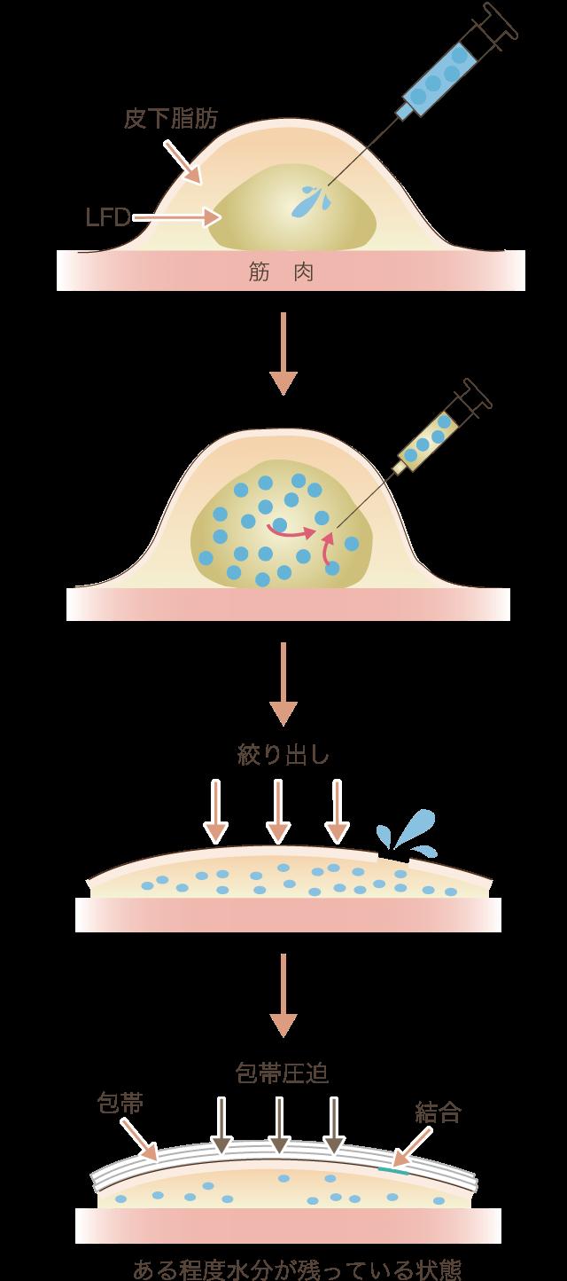 脂肪吸引後当日に傷口を縫合する場合の図