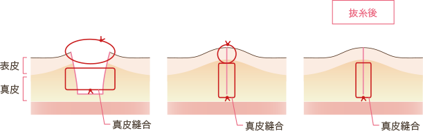 傷口縫合の断面図