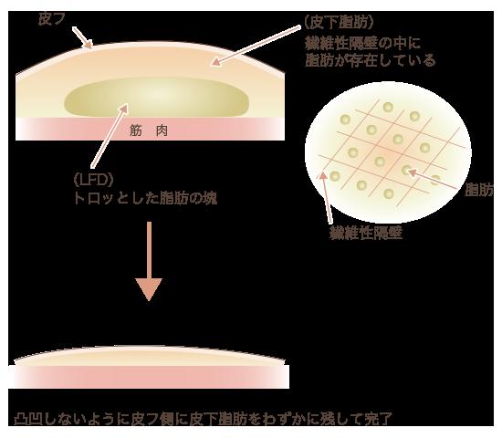 脂肪吸引前と後の断面図