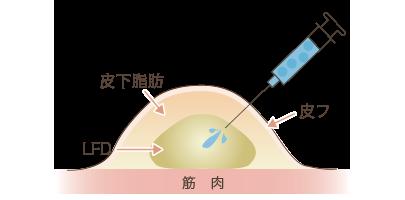 LFDに麻酔液注入する図