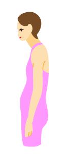 術後の姿勢で変わる仕上がり(悪い例:悪い姿勢)の図