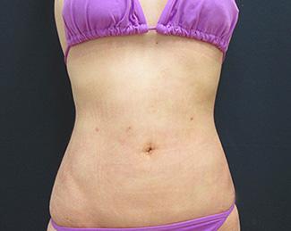 お腹の脂肪吸引1 (術後)正面